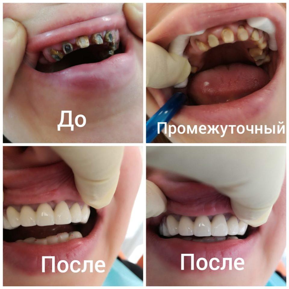Наши работы. Дарбинян Артак Владимирович врач стоматолог универсал